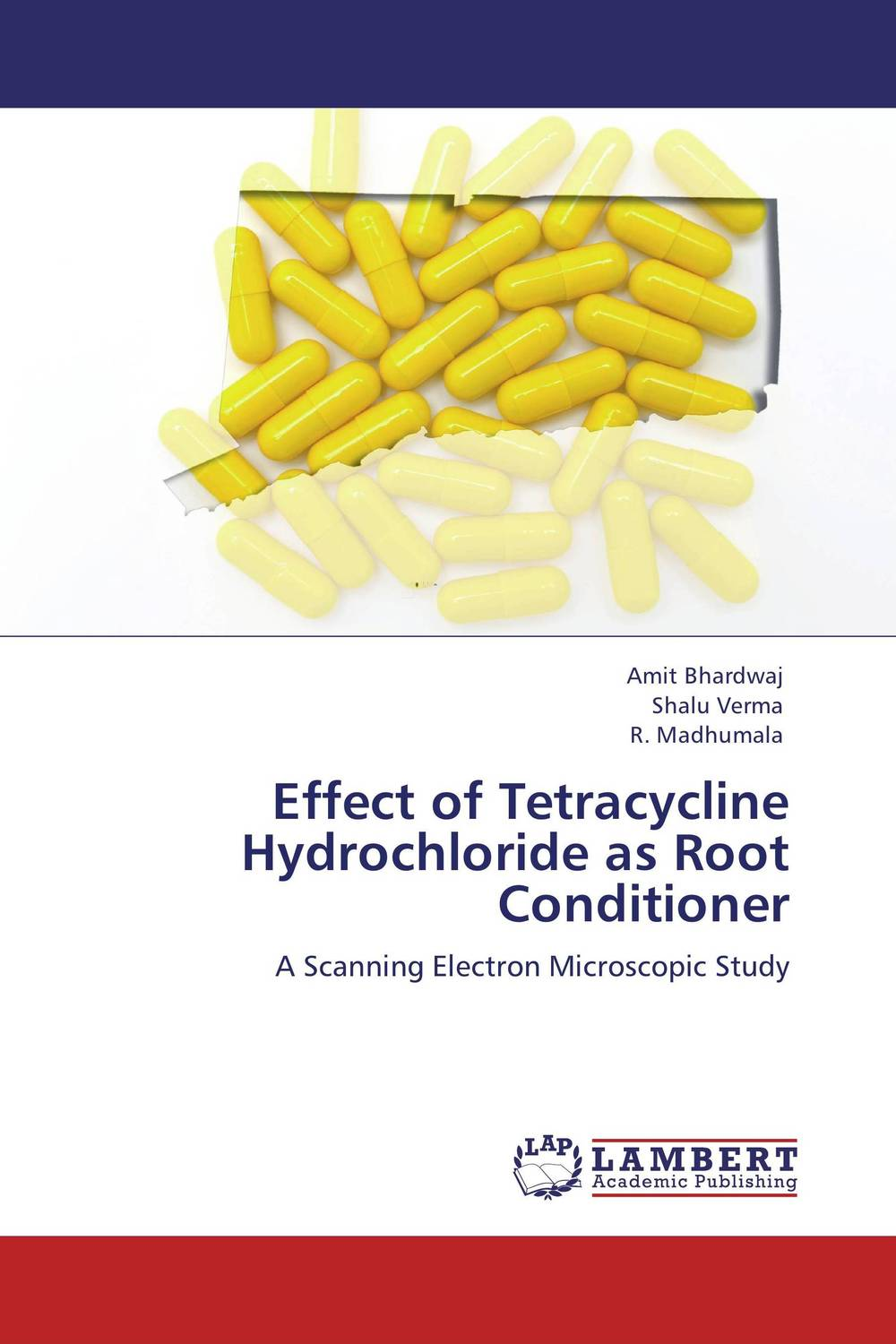 Effect of Tetracycline Hydrochloride as Root Conditioner found in brooklyn