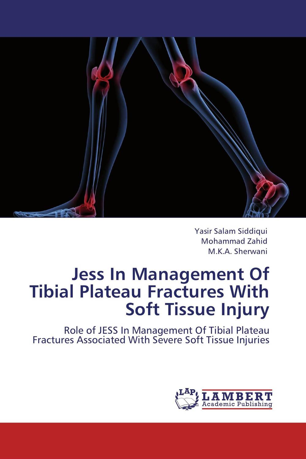 цена на Jess In Management Of Tibial Plateau Fractures With Soft Tissue Injury