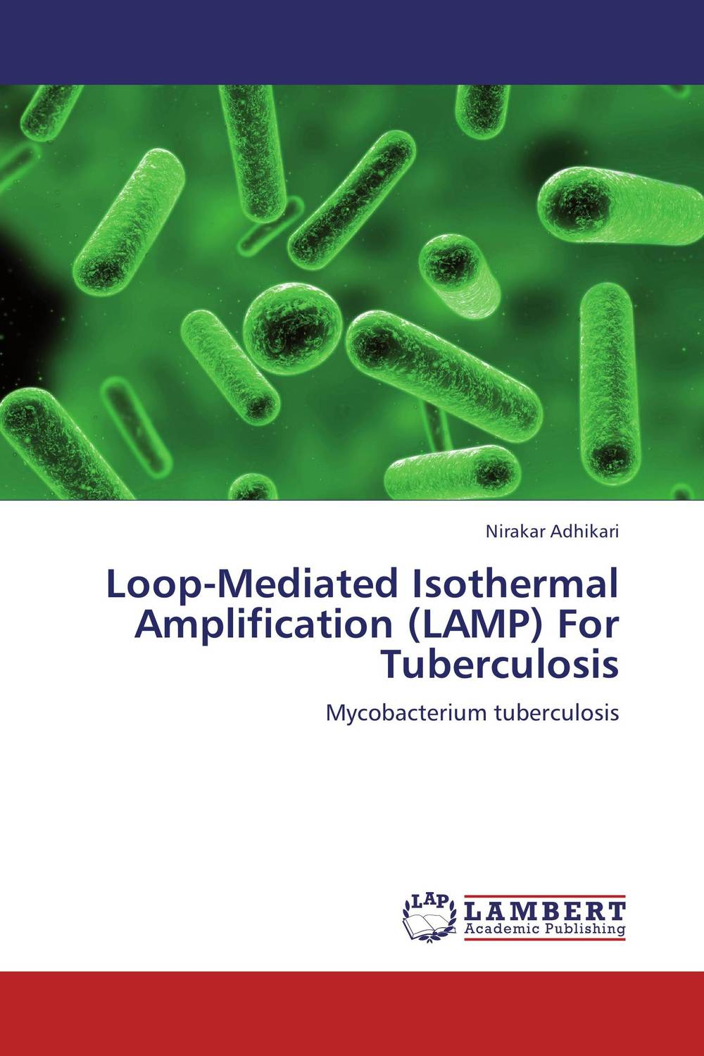 Loop-Mediated Isothermal Amplification (LAMP) For Tuberculosis comparison of global fisheries' efficiency levels using meta frontier