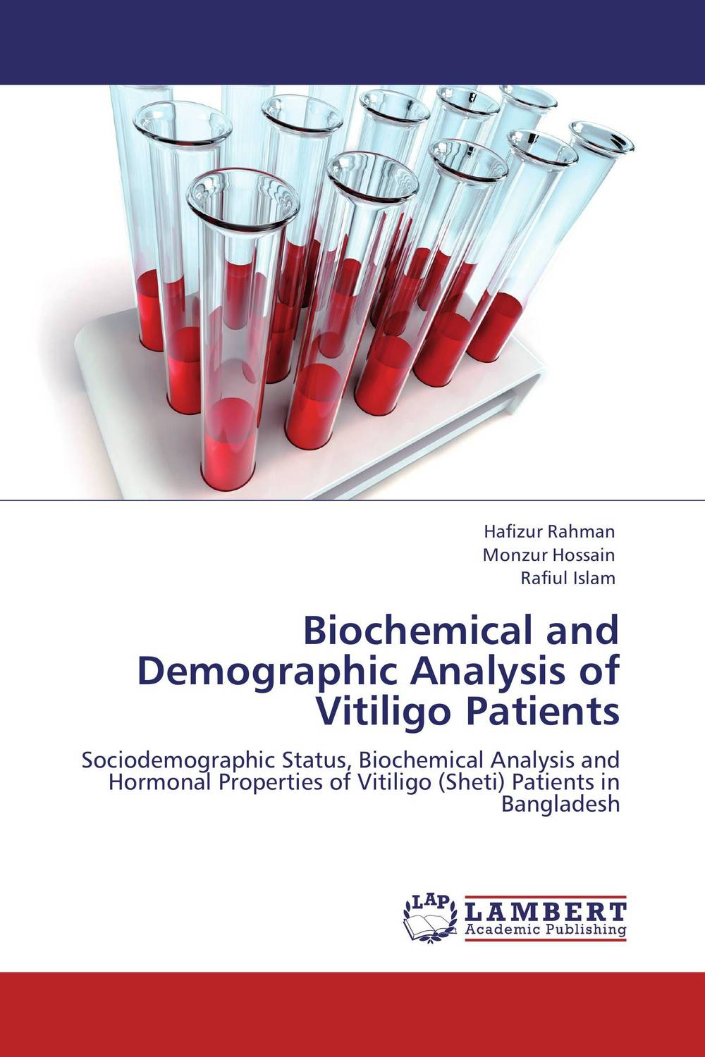 Biochemical and Demographic Analysis of Vitiligo Patients retinopathy among undiagnosed patients of pakistan