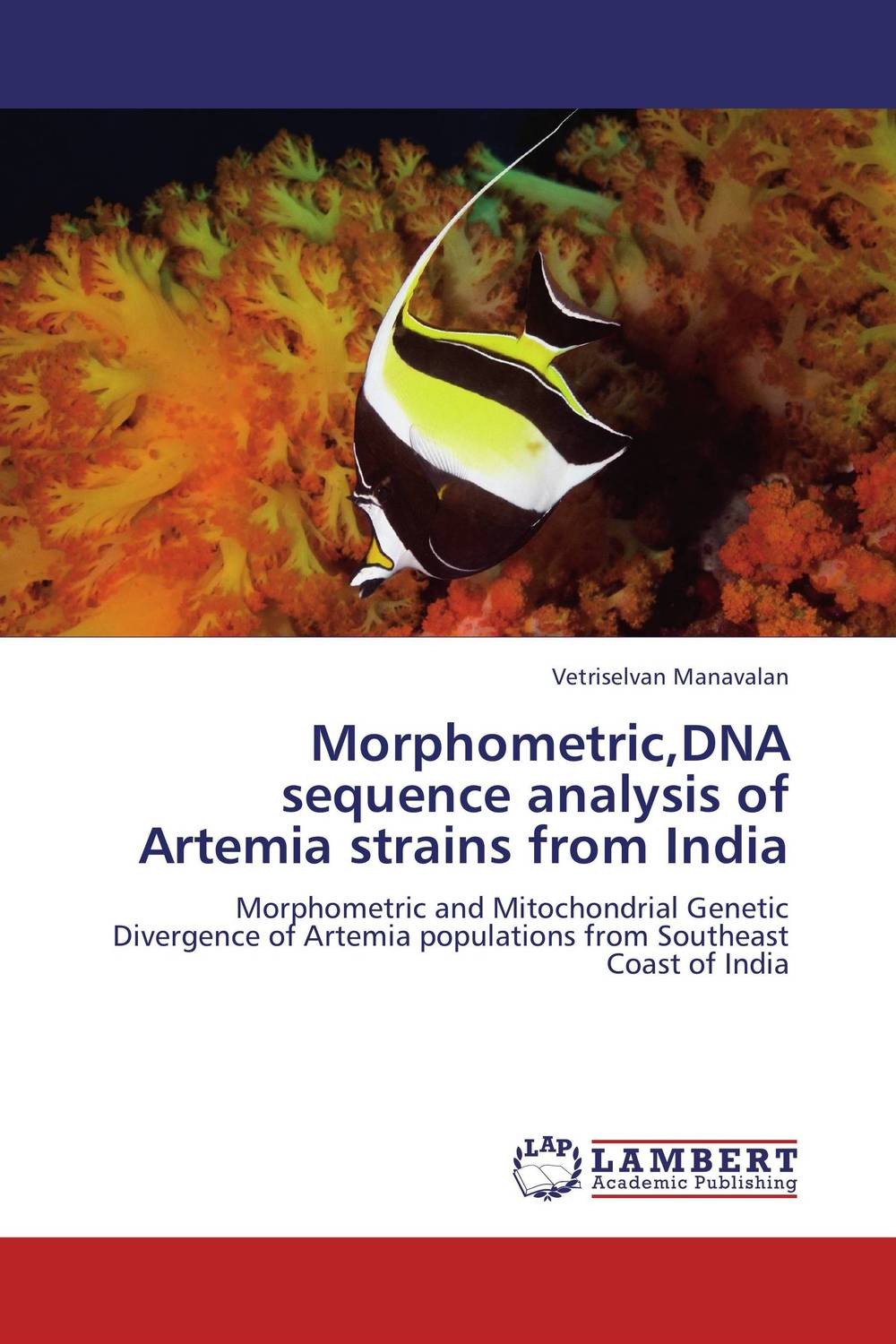 Morphometric,DNA sequence analysis of Artemia strains from India bx120 2ca steel strain gauge and steel strain gauge