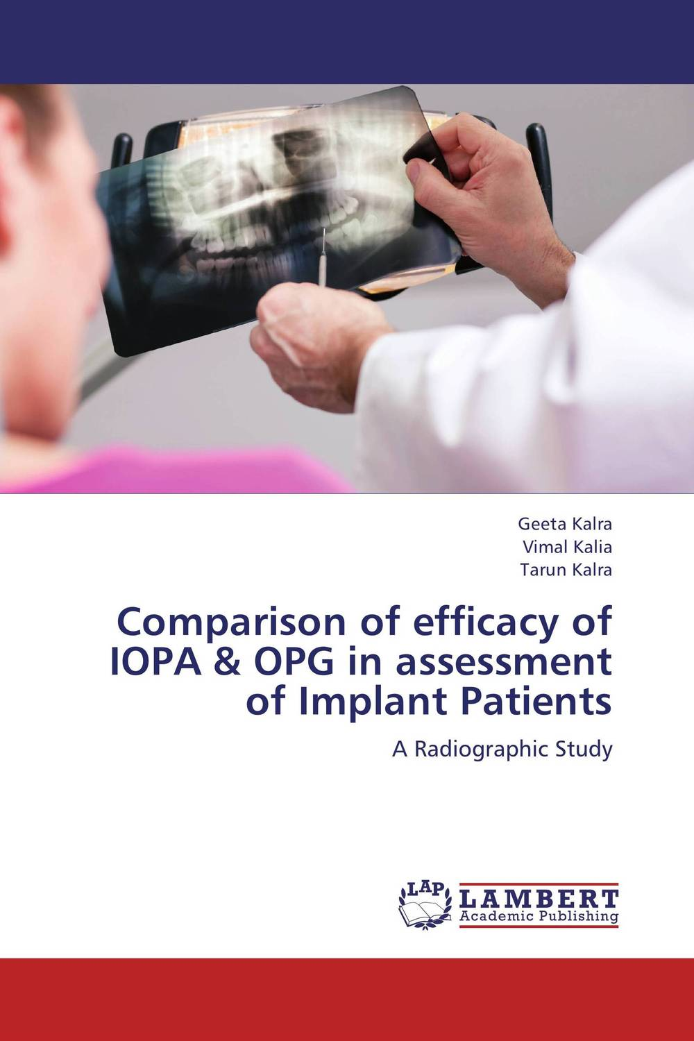 Comparison of efficacy of IOPA & OPG in assessment of Implant Patients esthetics in implant dentistry