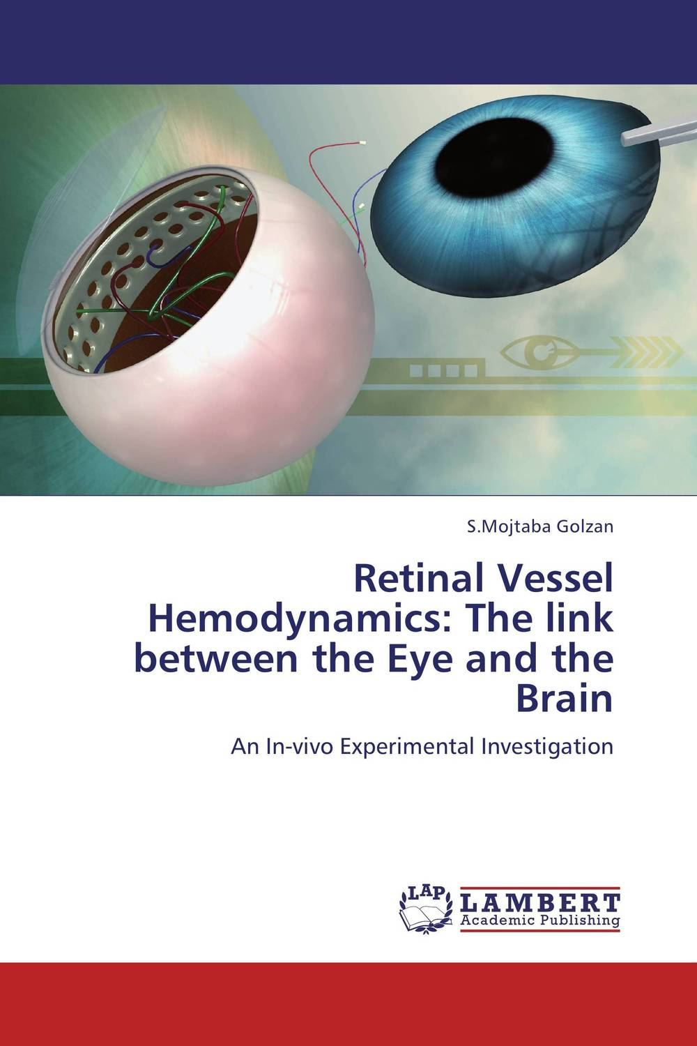 Retinal Vessel Hemodynamics: The link between the Eye and the Brain ilaria piano and claudia gargini antiapoptotic strategies in retinal degeneration
