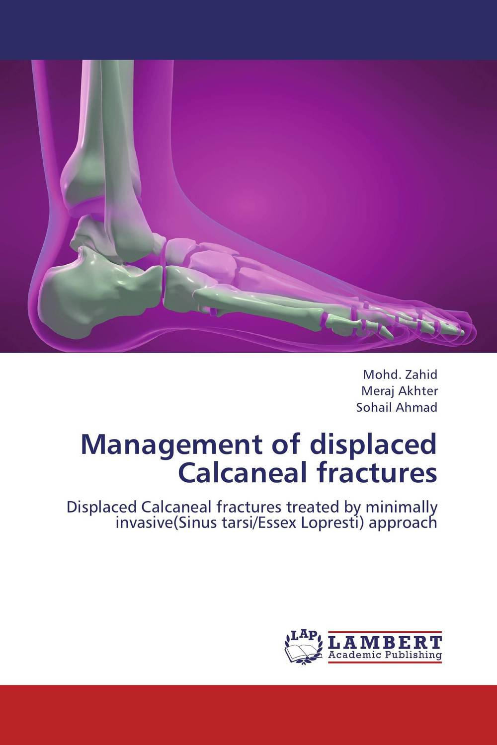 Management of displaced Calcaneal fractures rakesh kumar tiwari and rajendra prasad ojha conformation and stability of mixed dna triplex