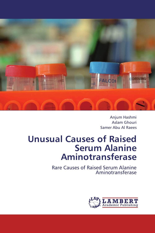 Unusual Causes of Raised Serum Alanine Aminotransferase