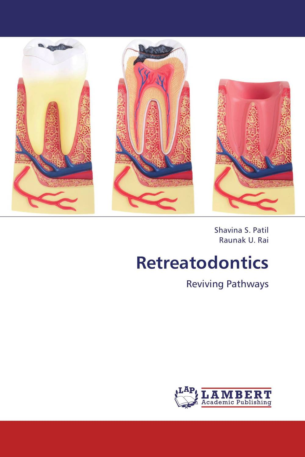 Retreatodontics 2017 new 2 boxes dental original woodpecker niti endo endodontic u file optional 15  40 used for root canal cleaning