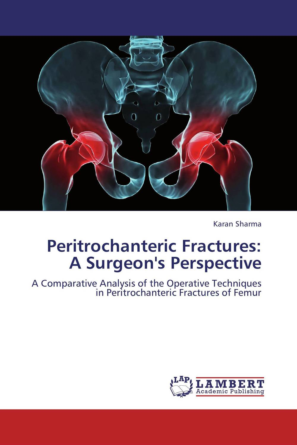 Peritrochanteric Fractures:  A Surgeon's Perspective fibular grafting in femoral neck fractures with posterior comminution