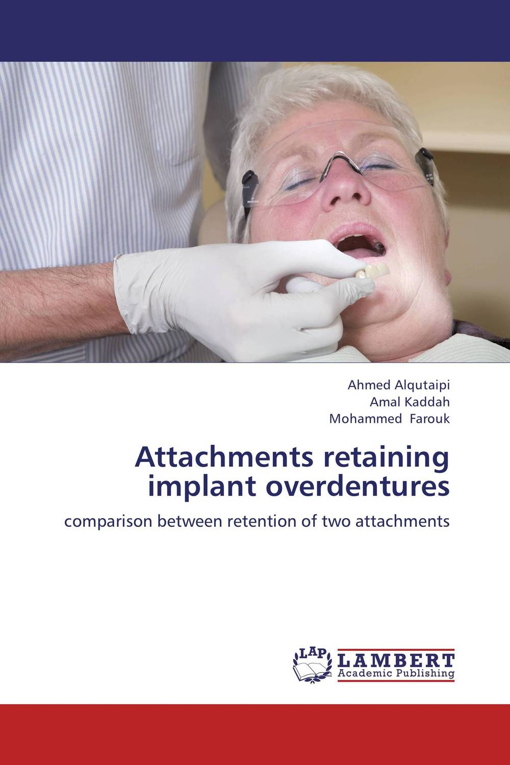 Attachments retaining implant overdentures esthetics in implant dentistry