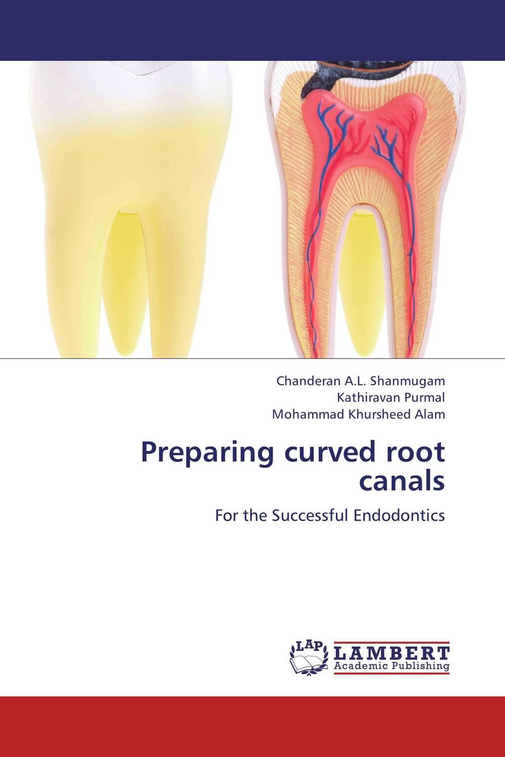 Preparing curved root canals root and canal morphology of third molar