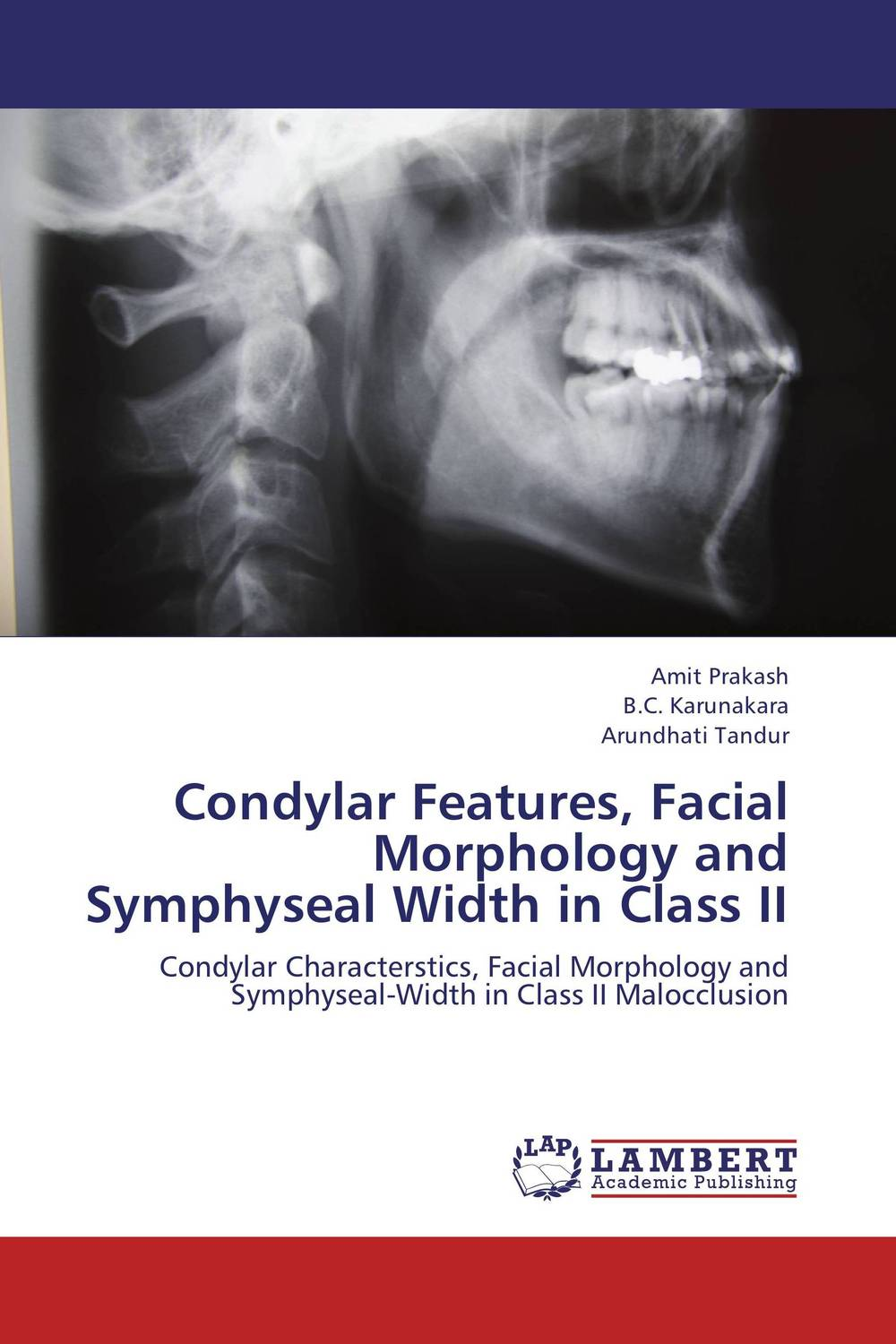 Condylar Features, Facial Morphology and Symphyseal Width in Class II different class