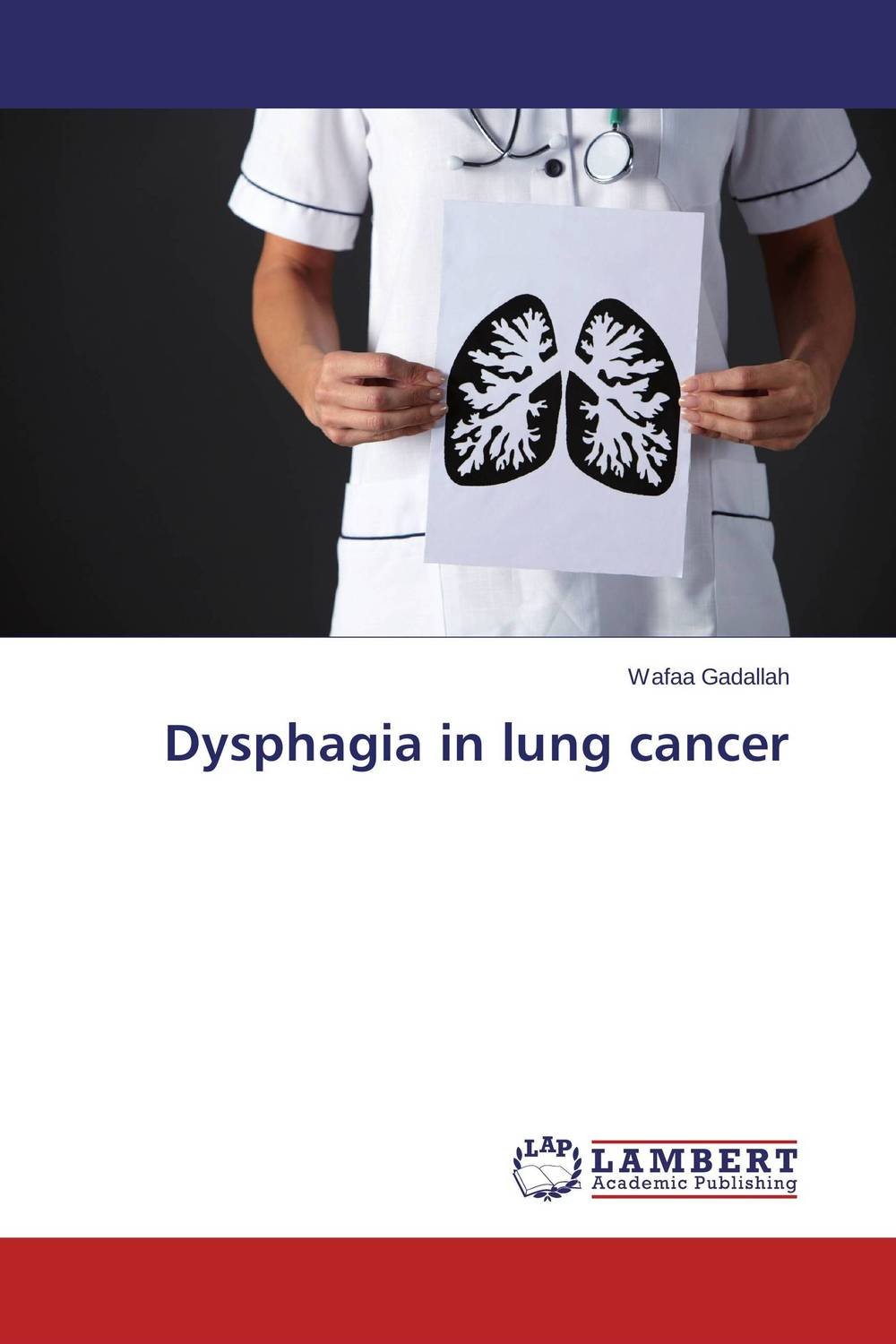 Dysphagia in lung cancer analysis of tp53 and promoter hypermethylation of mgmt in lung cancer