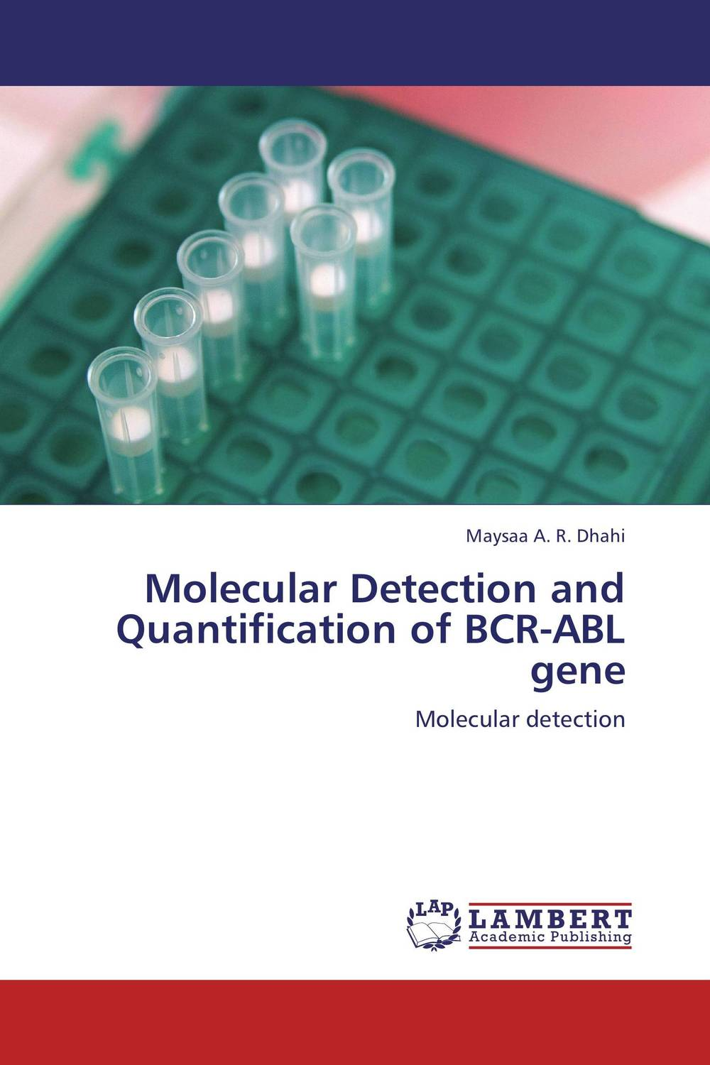 Molecular Detection and Quantification of BCR-ABL gene purnima sareen sundeep kumar and rakesh singh molecular and pathological characterization of slow rusting in wheat
