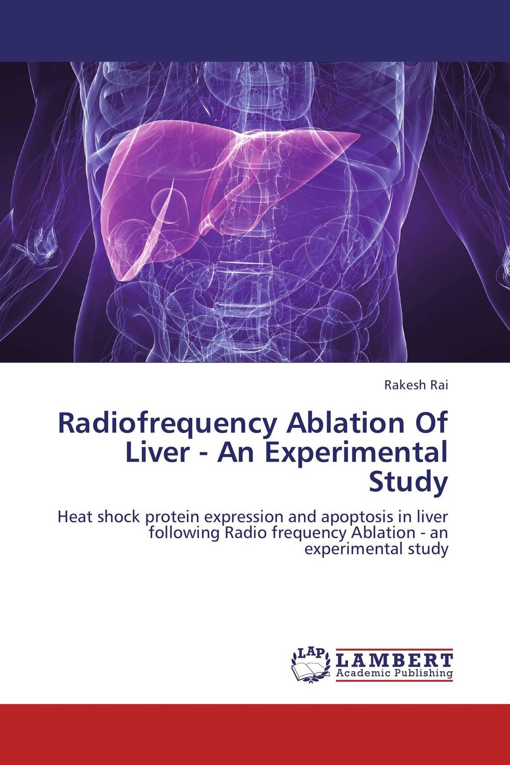 Radiofrequency Ablation Of Liver - An Experimental Study the zone