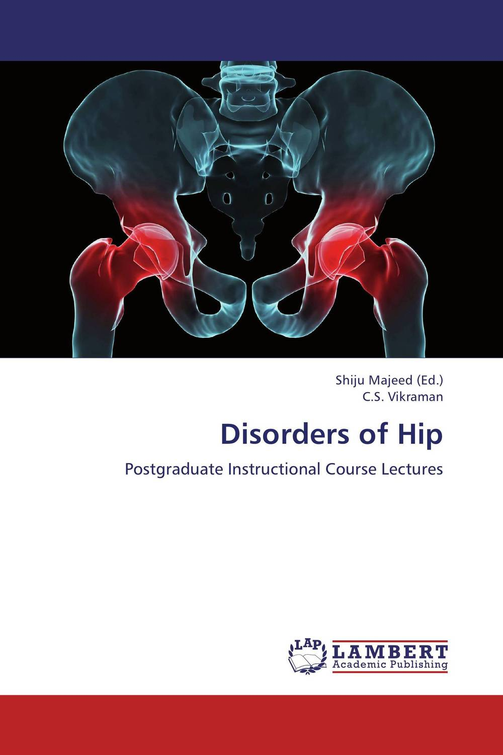 Disorders of Hip dr david m mburu prof mary w ndungu and prof ahmed hassanali virulence and repellency of fungi on macrotermes and mediating signals