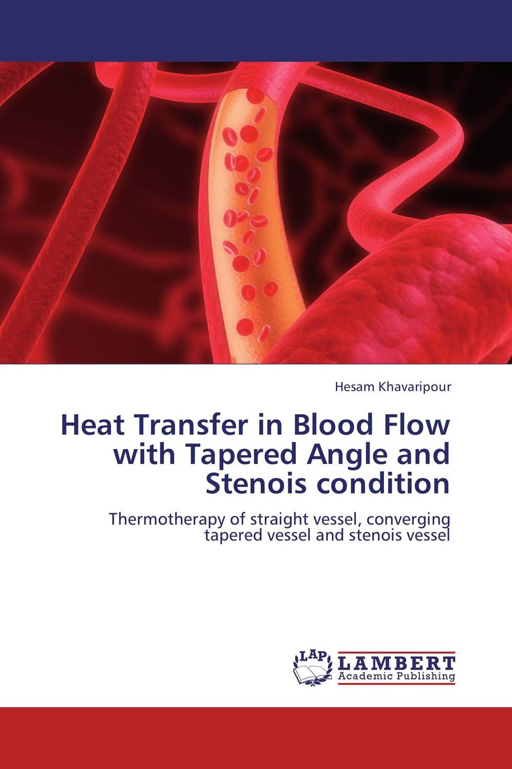 Heat Transfer in Blood Flow with Tapered Angle and Stenois condition johan marigny heat recovery in supermarket refrigeration