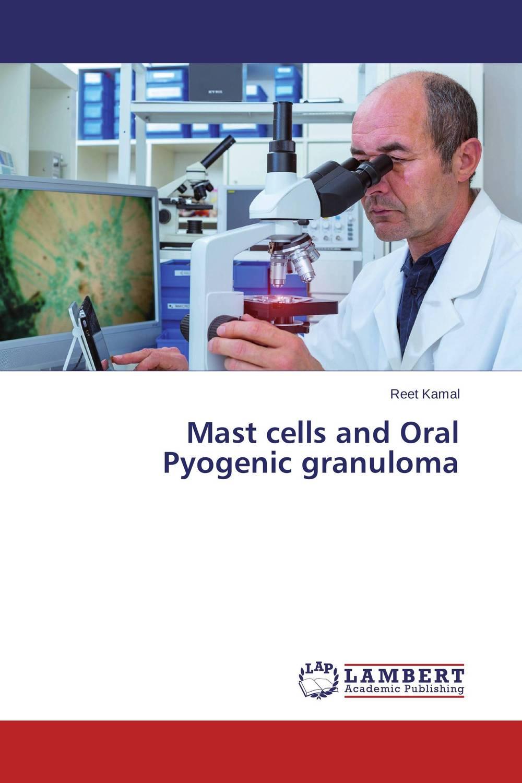 Mast cells and Oral Pyogenic granuloma платье mast mast ma136ewjei60