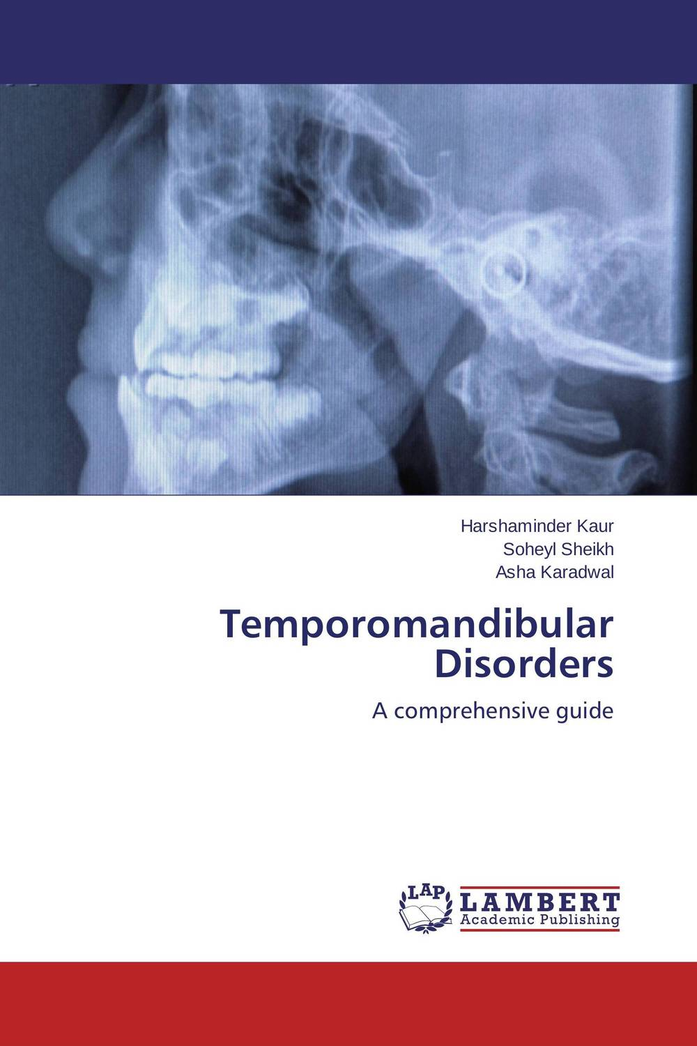 Temporomandibular Disorders temporomandibular disorder