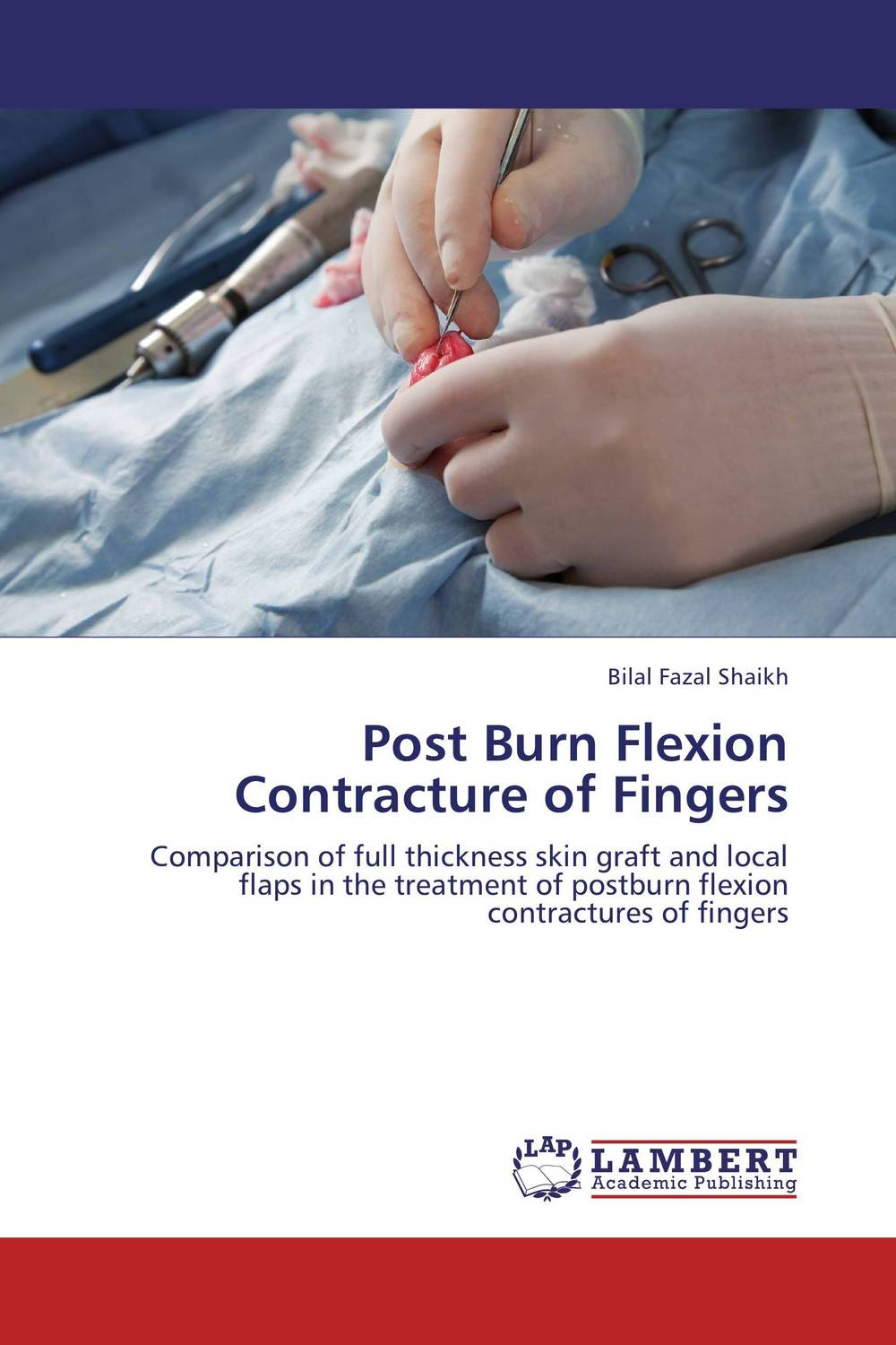 Post Burn Flexion Contracture of Fingers postmortem epidemiological profile of burn cases