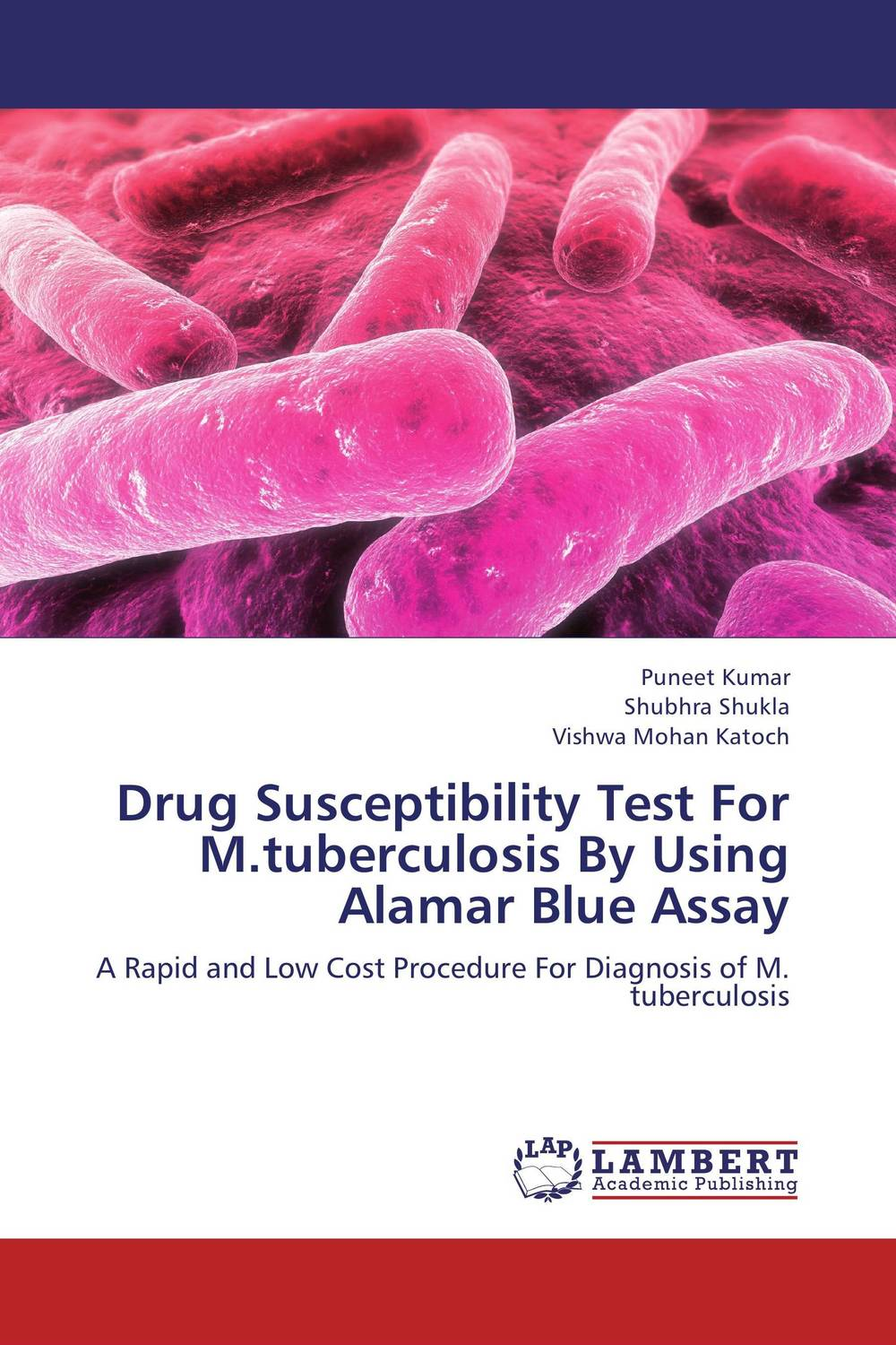 Drug Susceptibility Test For M.tuberculosis By Using Alamar Blue Assay