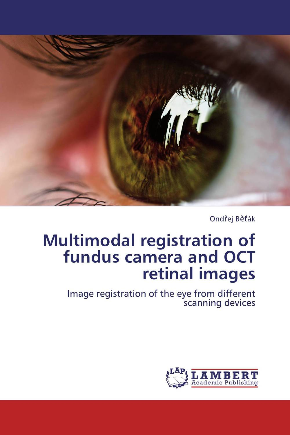 Multimodal registration of fundus camera and OCT retinal images multimodal fusion of iris and fingerprint