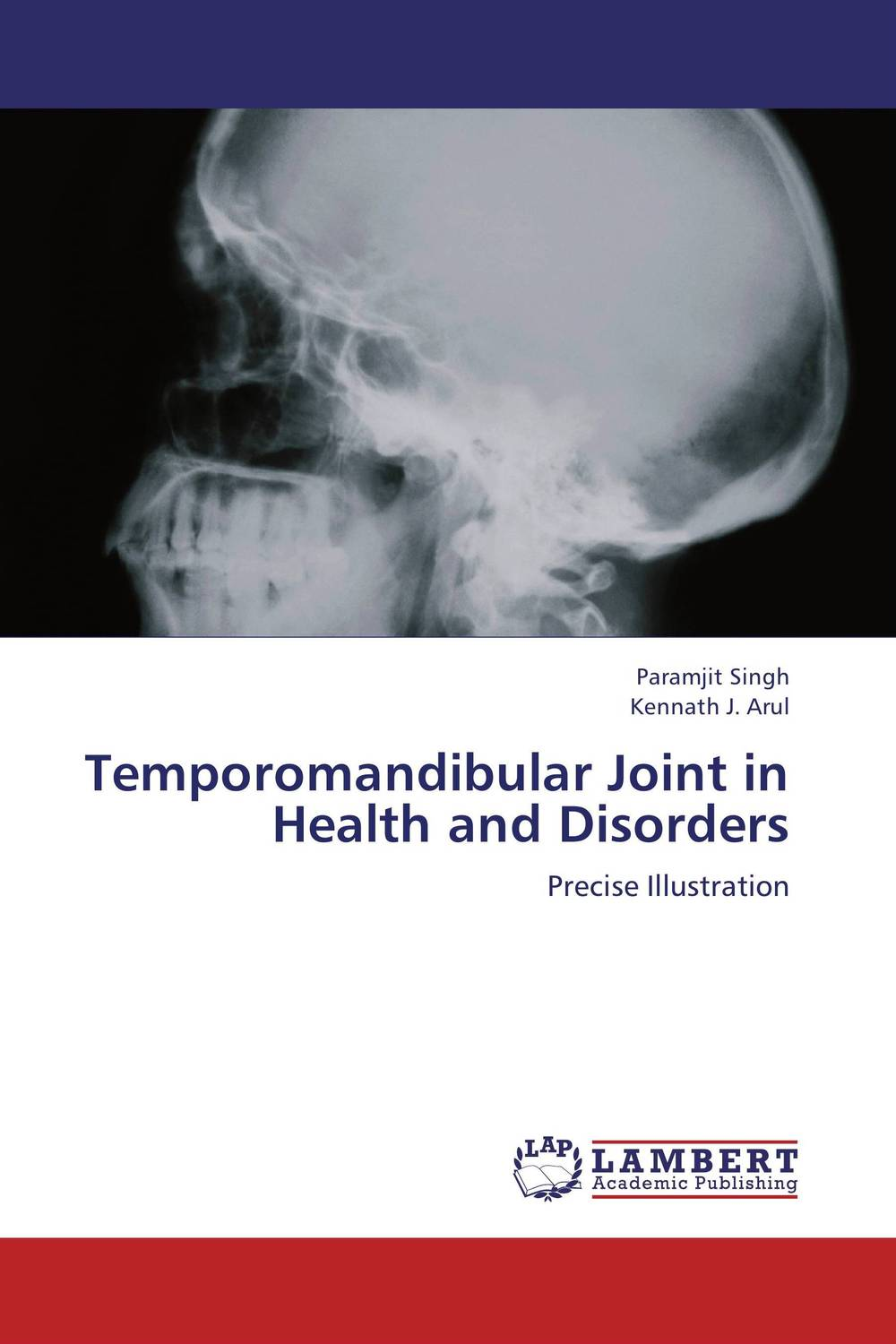 Temporomandibular Joint in Health and Disorders temporomandibular disorders and prosthetic replacement of missing teeth