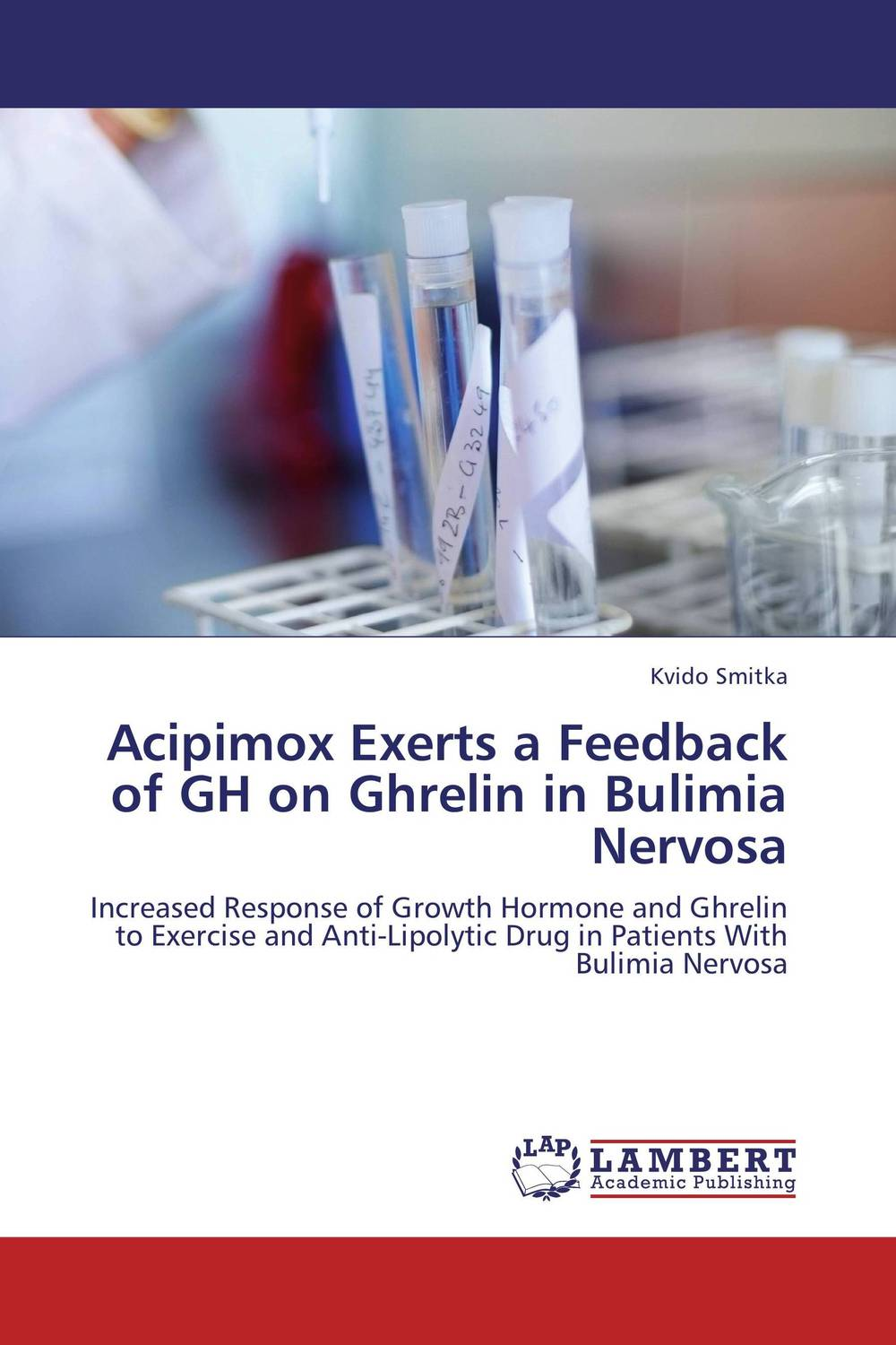 цены  Acipimox Exerts a Feedback of GH on Ghrelin in Bulimia Nervosa