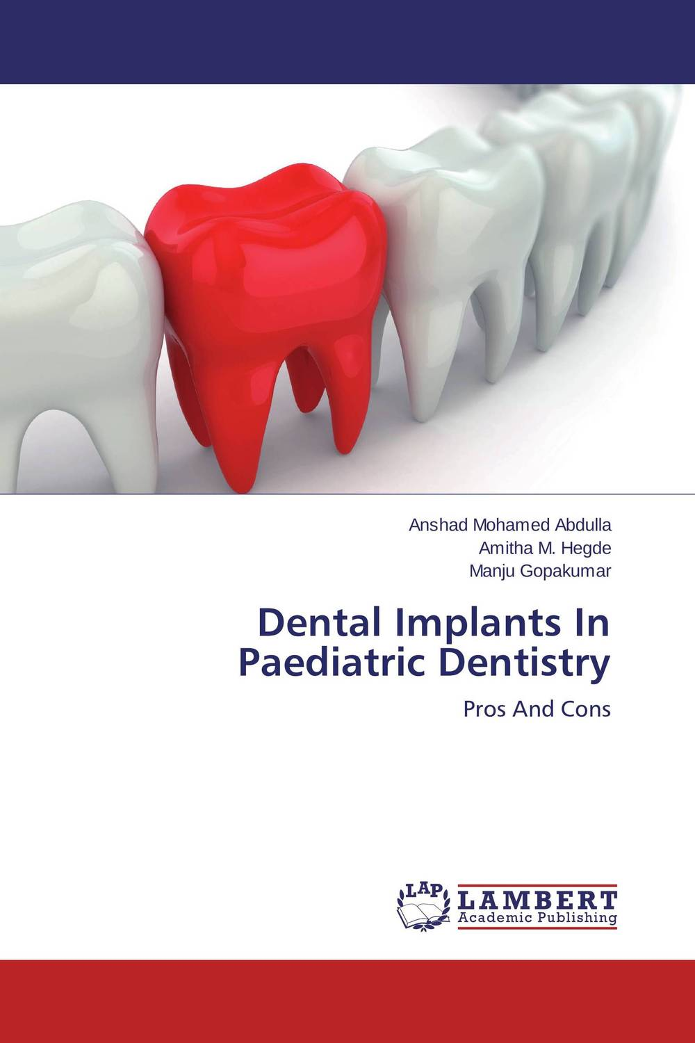 Dental Implants In Paediatric Dentistry wavelets processor
