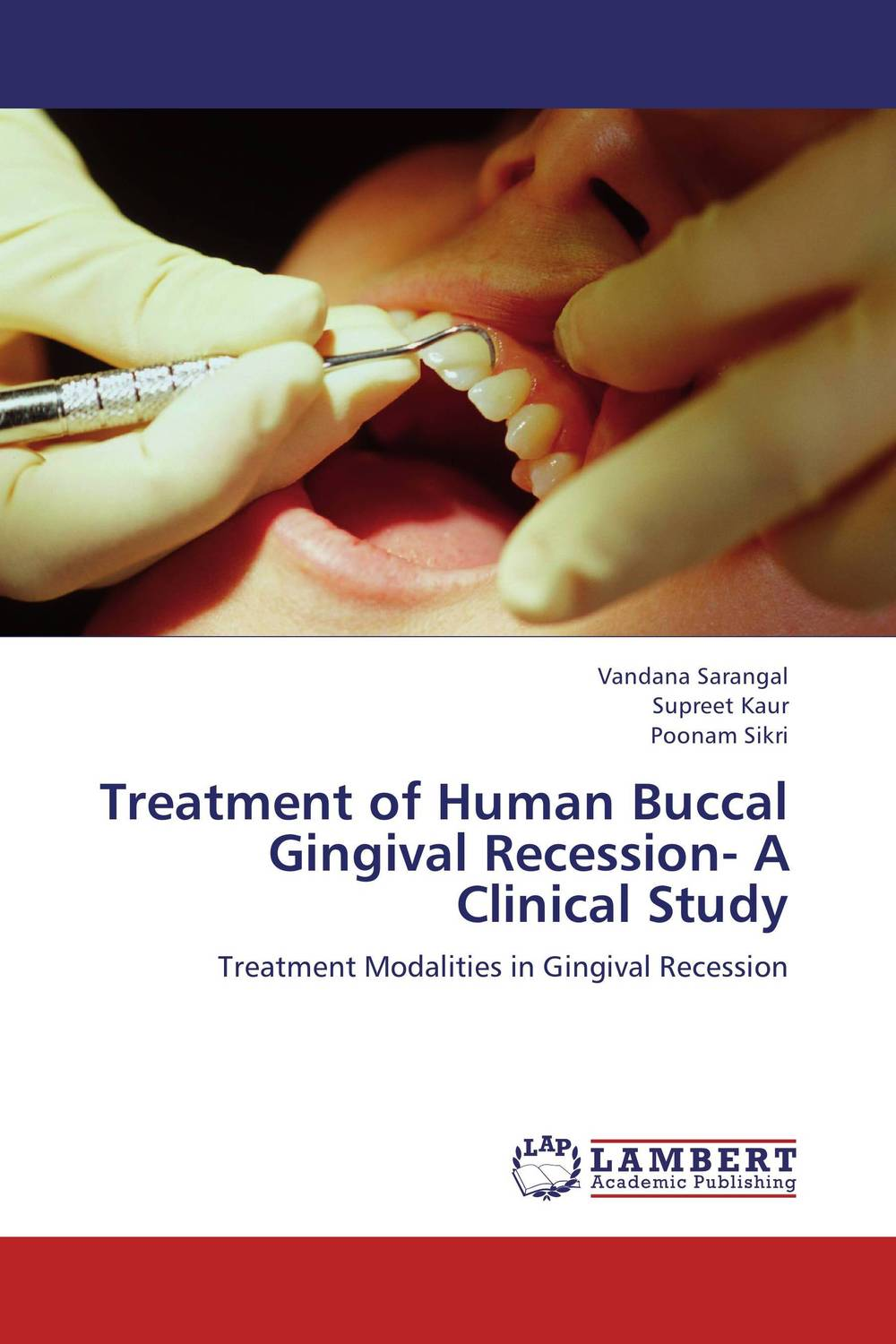 Treatment of Human Buccal Gingival Recession- A Clinical Study concepts of gingiva and gingival crevicular fluid