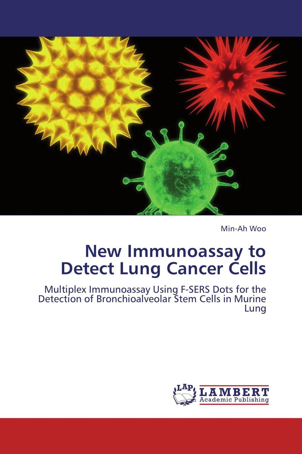 New Immunoassay to Detect Lung Cancer Cells analysis of tp53 and promoter hypermethylation of mgmt in lung cancer