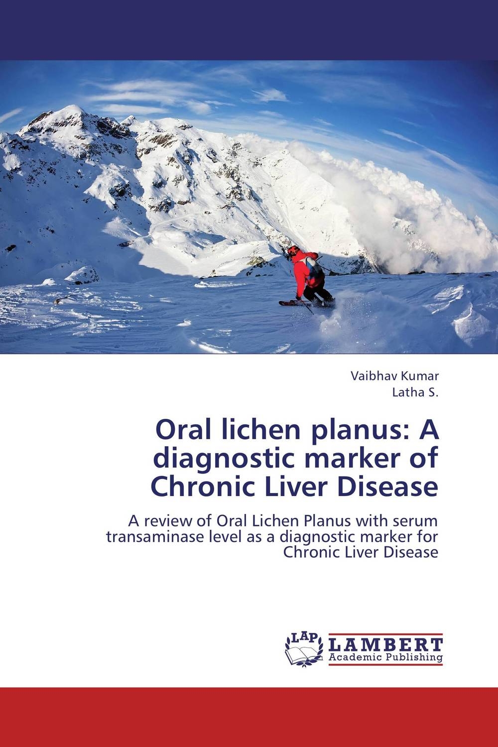 Oral lichen planus: A diagnostic marker of Chronic Liver Disease vrunda shah and vipul shah herbal therapy for liver disease