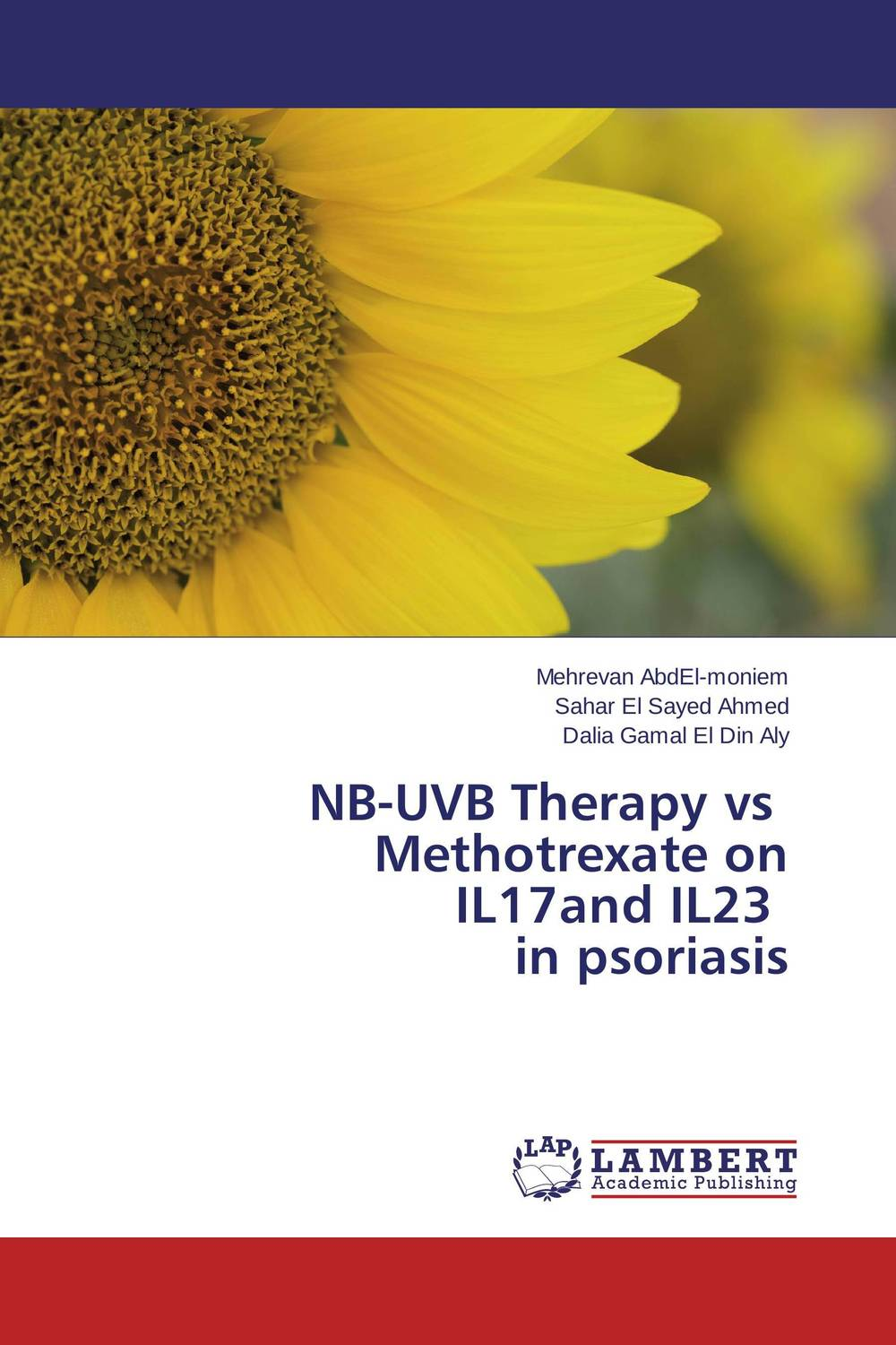 NB-UVB Therapy vs Methotrexate on IL17and IL23 in psoriasis