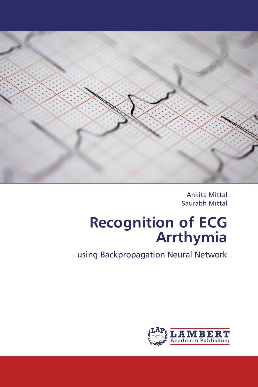 Recognition of ECG Arrthymia artificial neural network for studying human performance