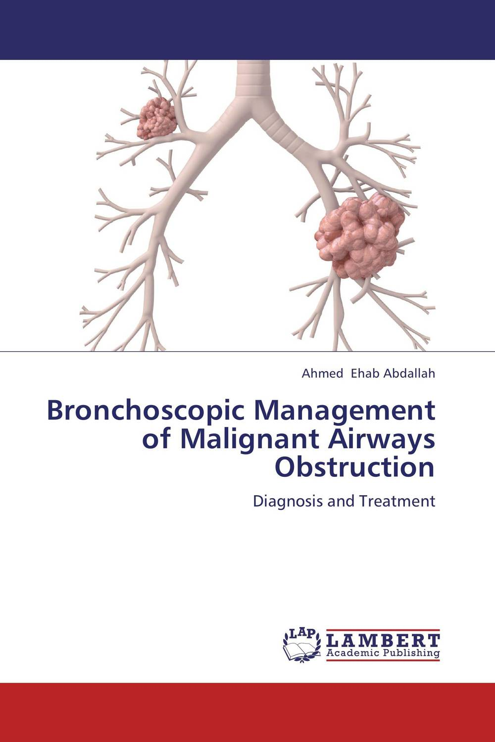Bronchoscopic Management of Malignant Airways Obstruction analysis of tp53 and promoter hypermethylation of mgmt in lung cancer