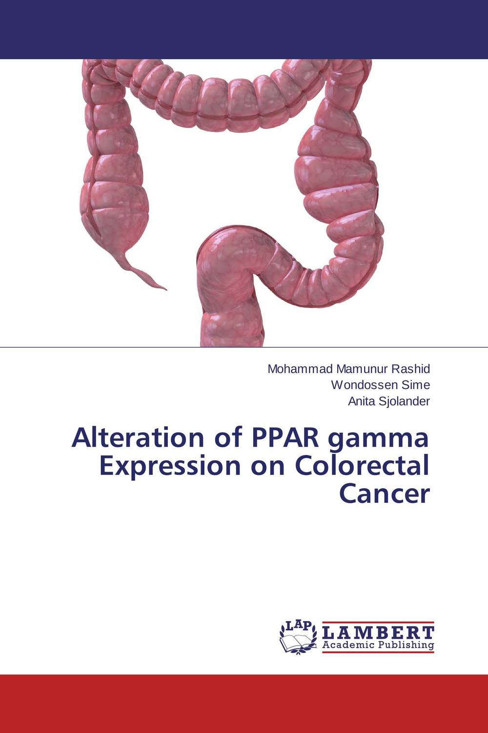 Alteration of PPAR gamma Expression on Colorectal Cancer colorectal cancer