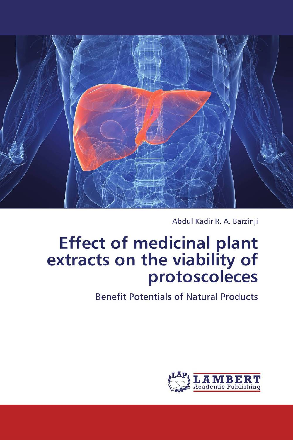 Effect of medicinal plant extracts on the viability of protoscoleces effect of medicinal plant extracts on the viability of protoscoleces