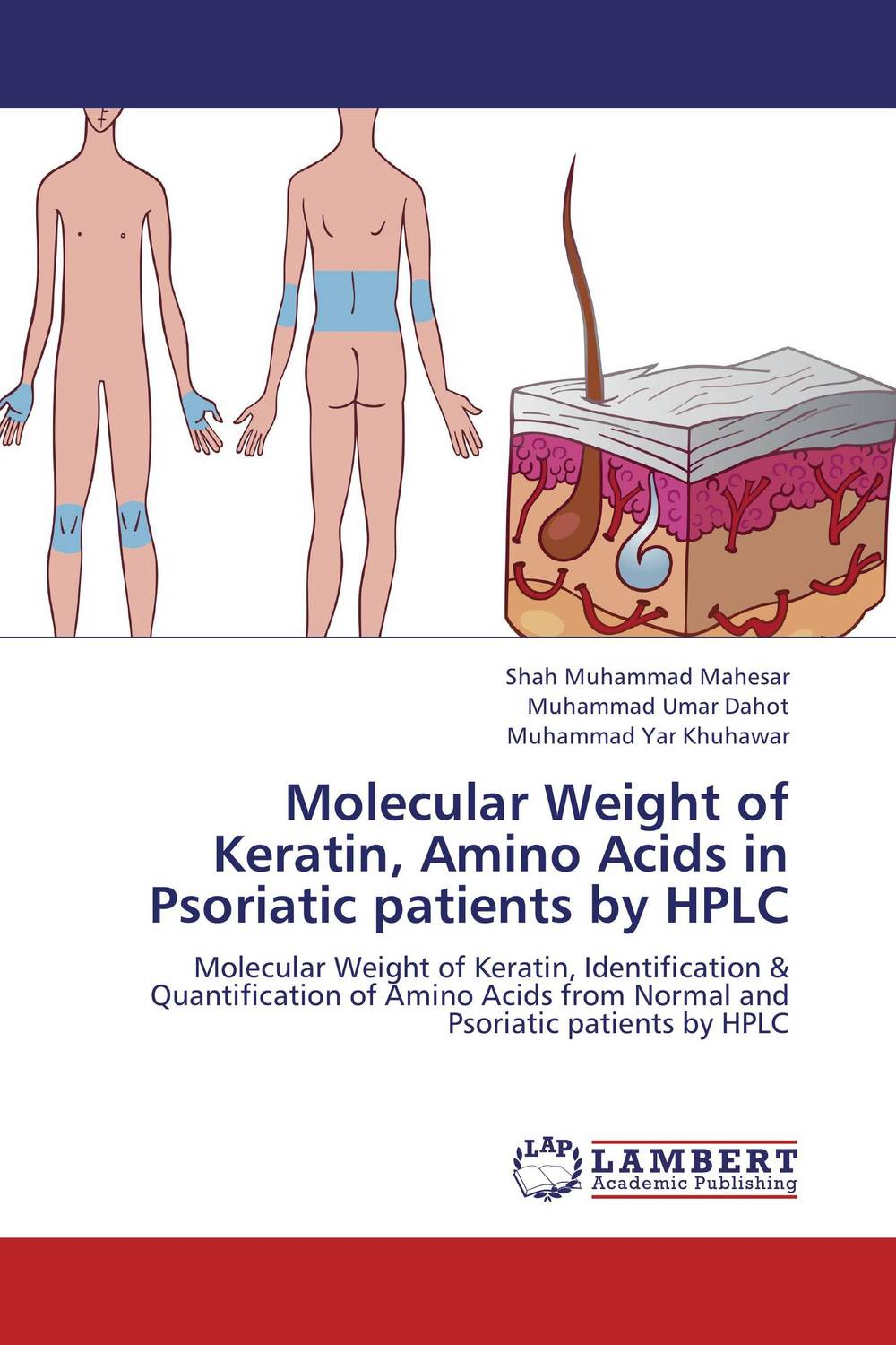 Molecular Weight of Keratin, Amino Acids in Psoriatic patients by HPLC