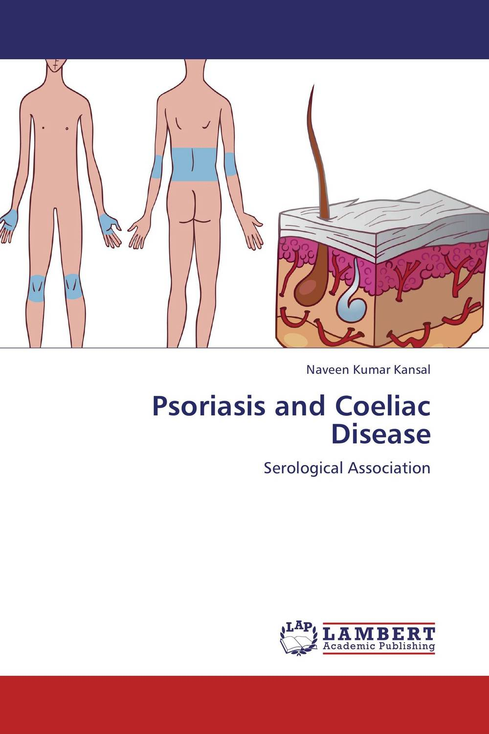 Psoriasis and Coeliac Disease