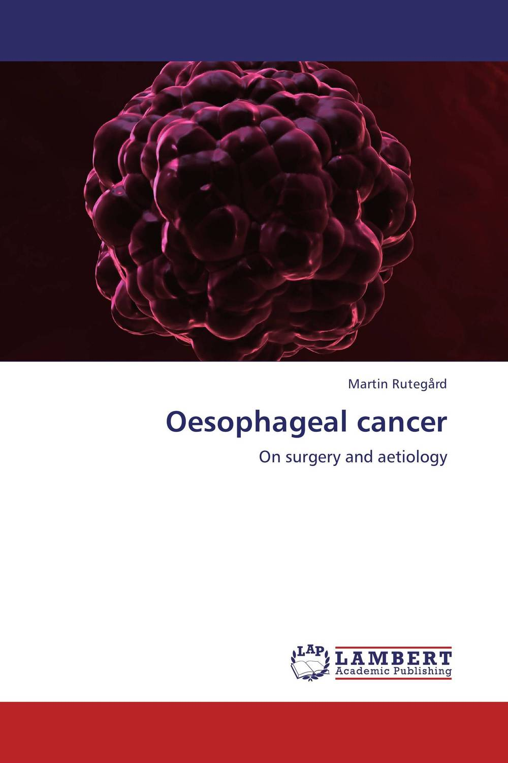 Фото Oesophageal cancer cervical cancer in amhara region in ethiopia
