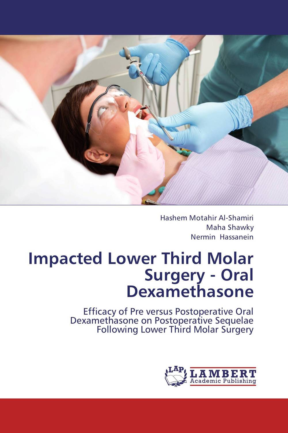 Impacted Lower Third Molar Surgery - Oral Dexamethasone cryosurgery in oral and maxillofacial surgery