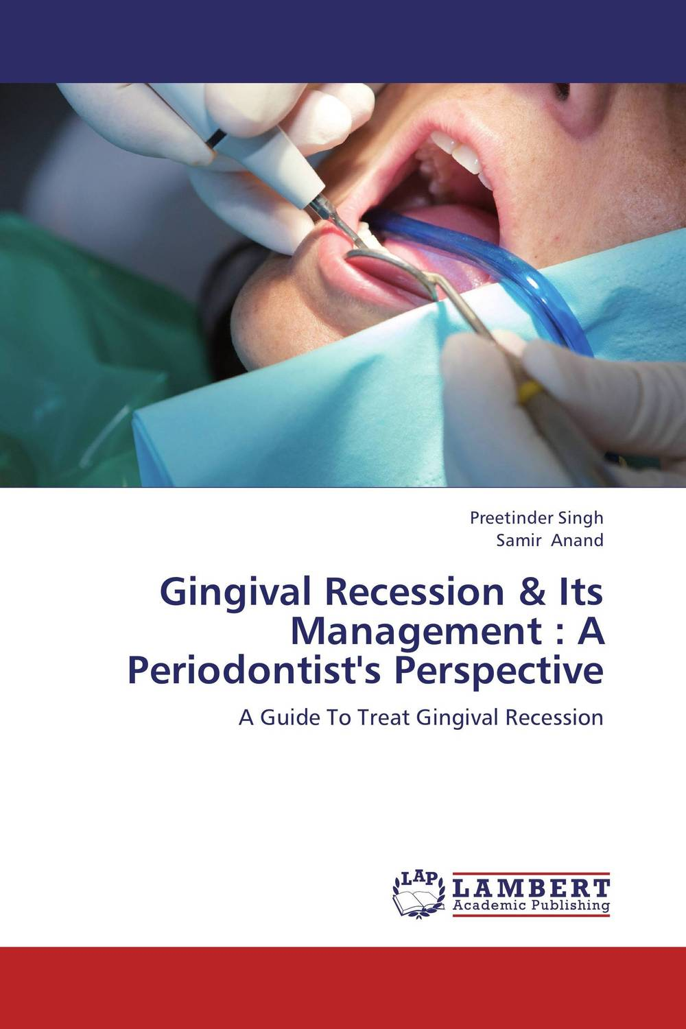 Gingival Recession & Its Management : A Periodontist's Perspective case history of therapeutic patient manual