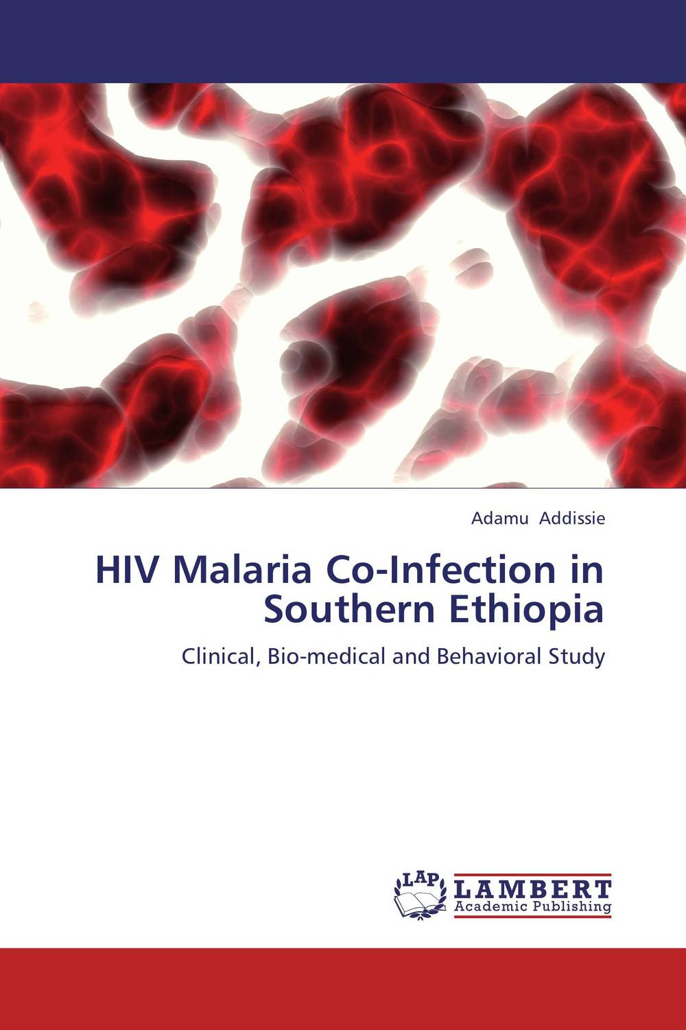 HIV Malaria Co-Infection in Southern Ethiopia the johns hopkins hospital 1998 1999 guide to medical care of patients with hiv infection