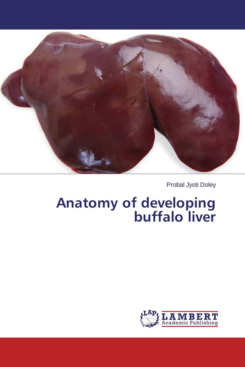 Anatomy of developing buffalo liver anatomy of a disappearance