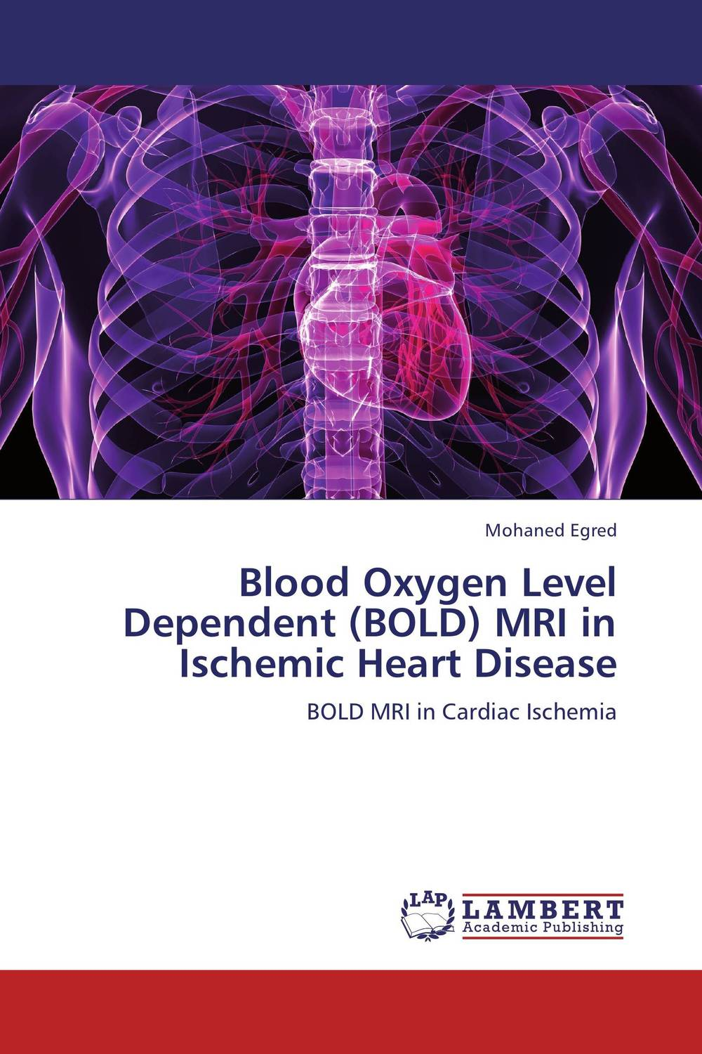 Blood Oxygen Level Dependent (BOLD) MRI in Ischemic Heart Disease effect of ischemic heart disease on the audiovestibular functions