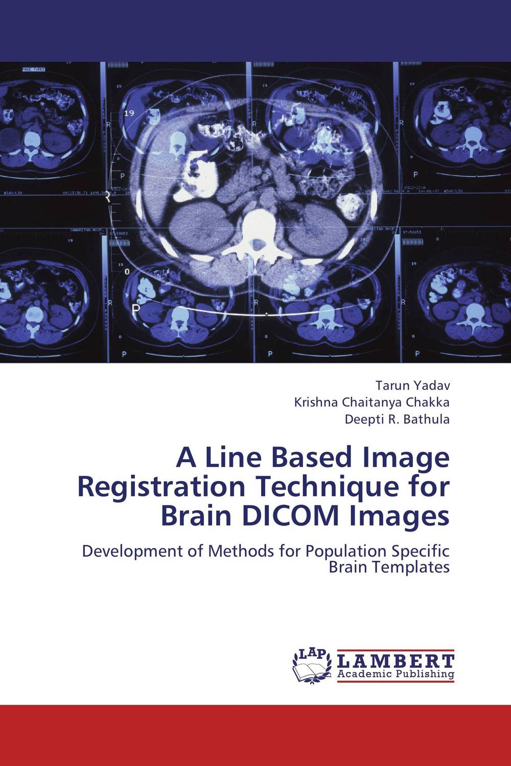 A Line Based Image Registration Technique for Brain DICOM Images clustering and optimization based image segmentation techniques