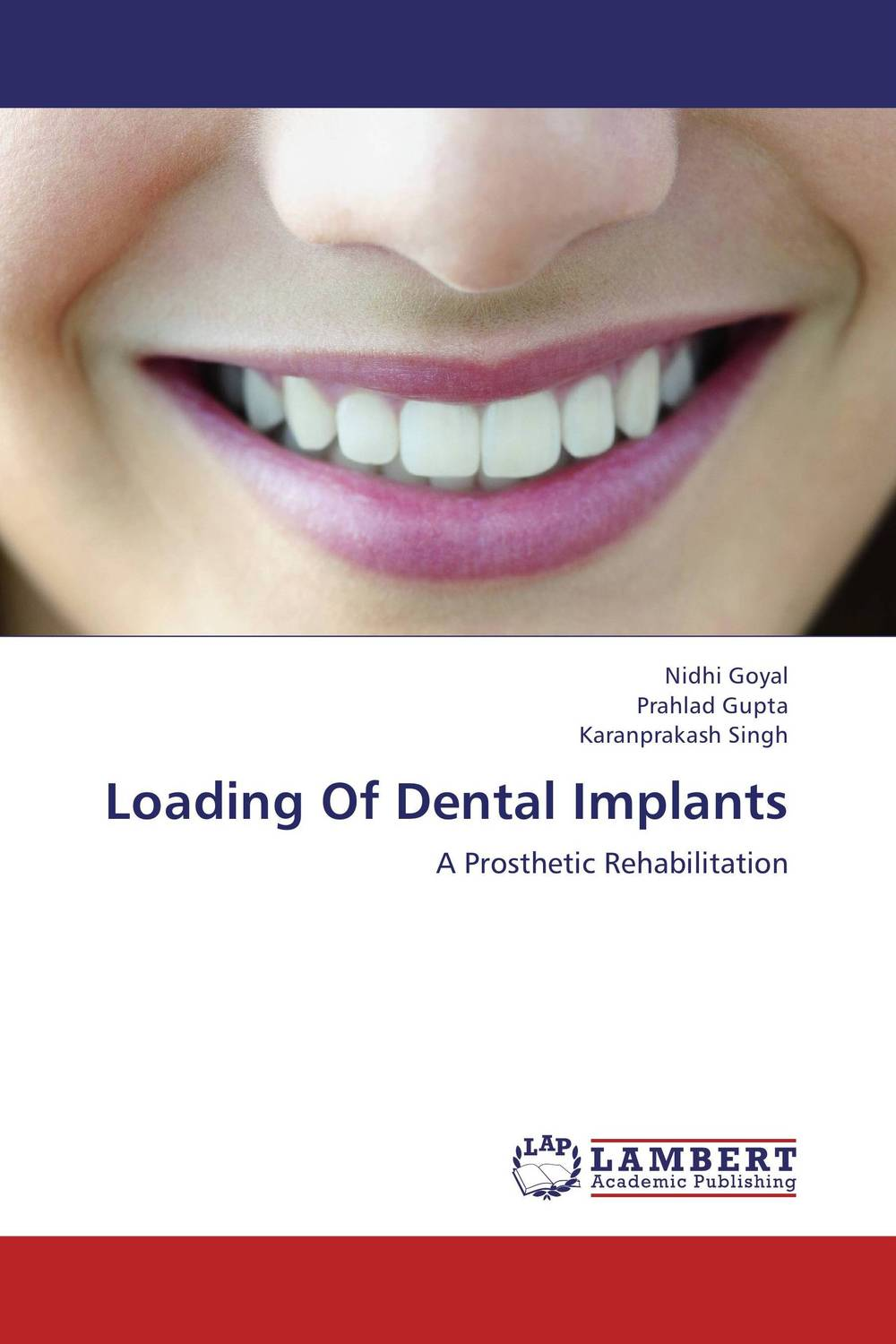 Loading Of Dental Implants temporomandibular disorders and prosthetic replacement of missing teeth