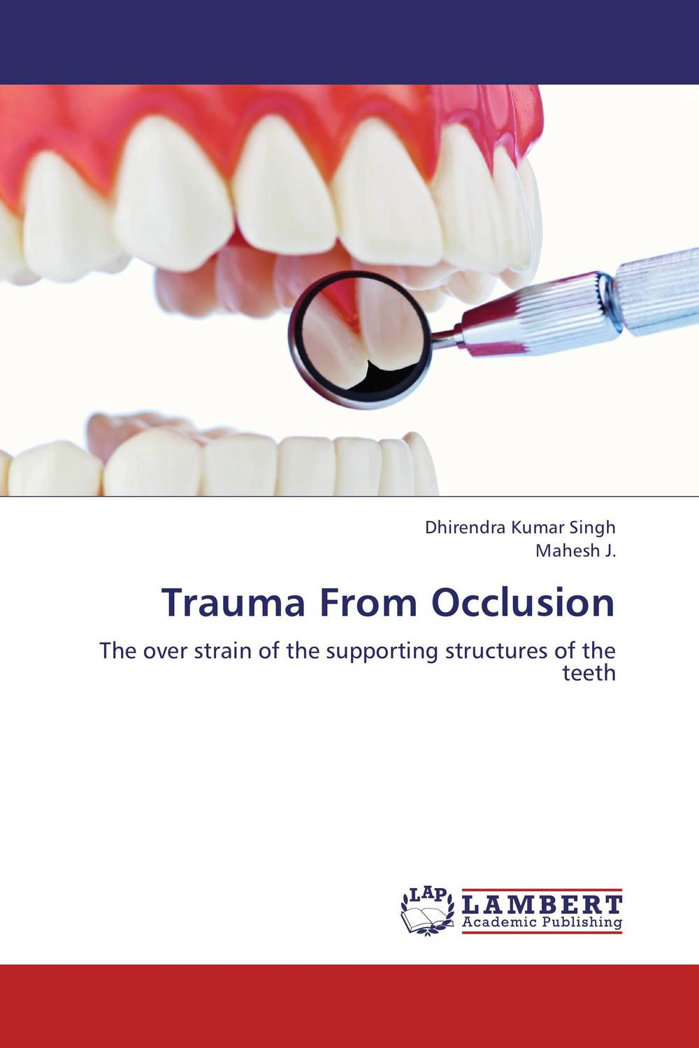 Trauma From Occlusion microbial biofilm and its relation to periodontal disease