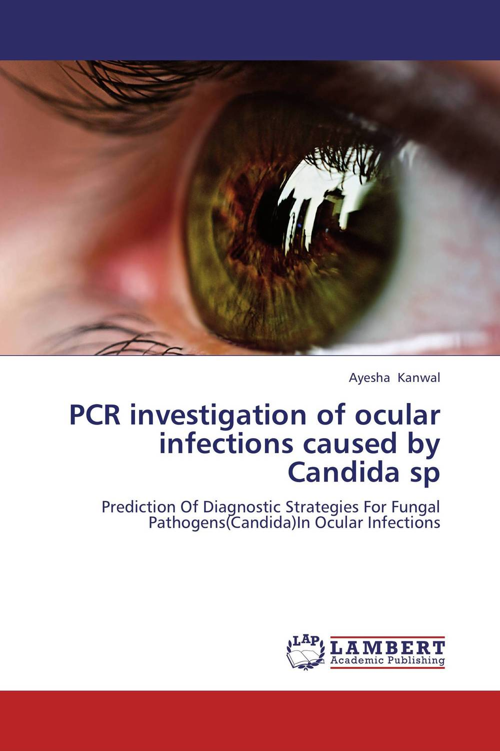 PCR investigation of ocular infections caused by Candida sp cctv video anti jamming device effectively suppress the interference caused by a variety of factors for cctv system