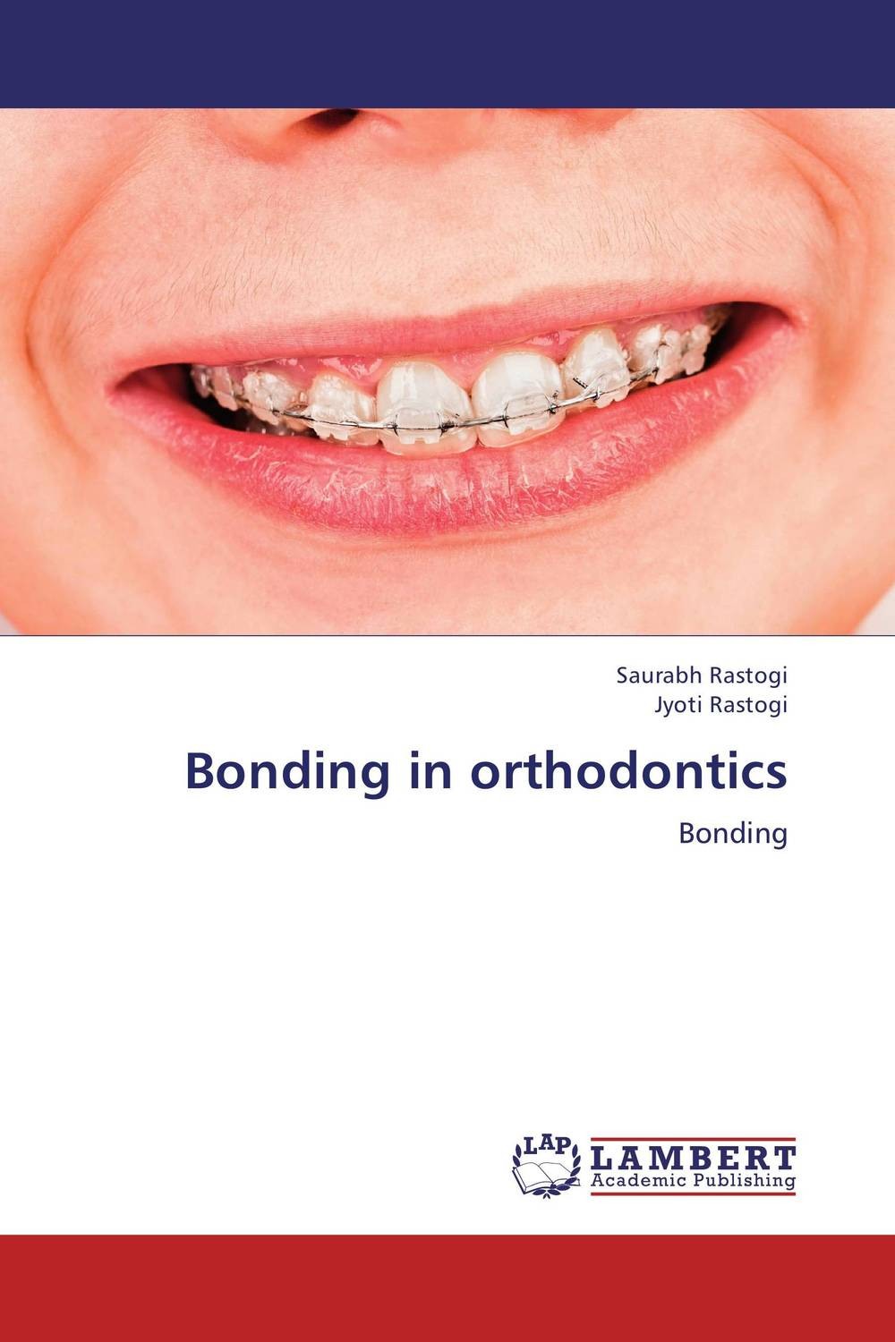 Bonding in orthodontics evaluation of carbon capture and storage as a best available technique