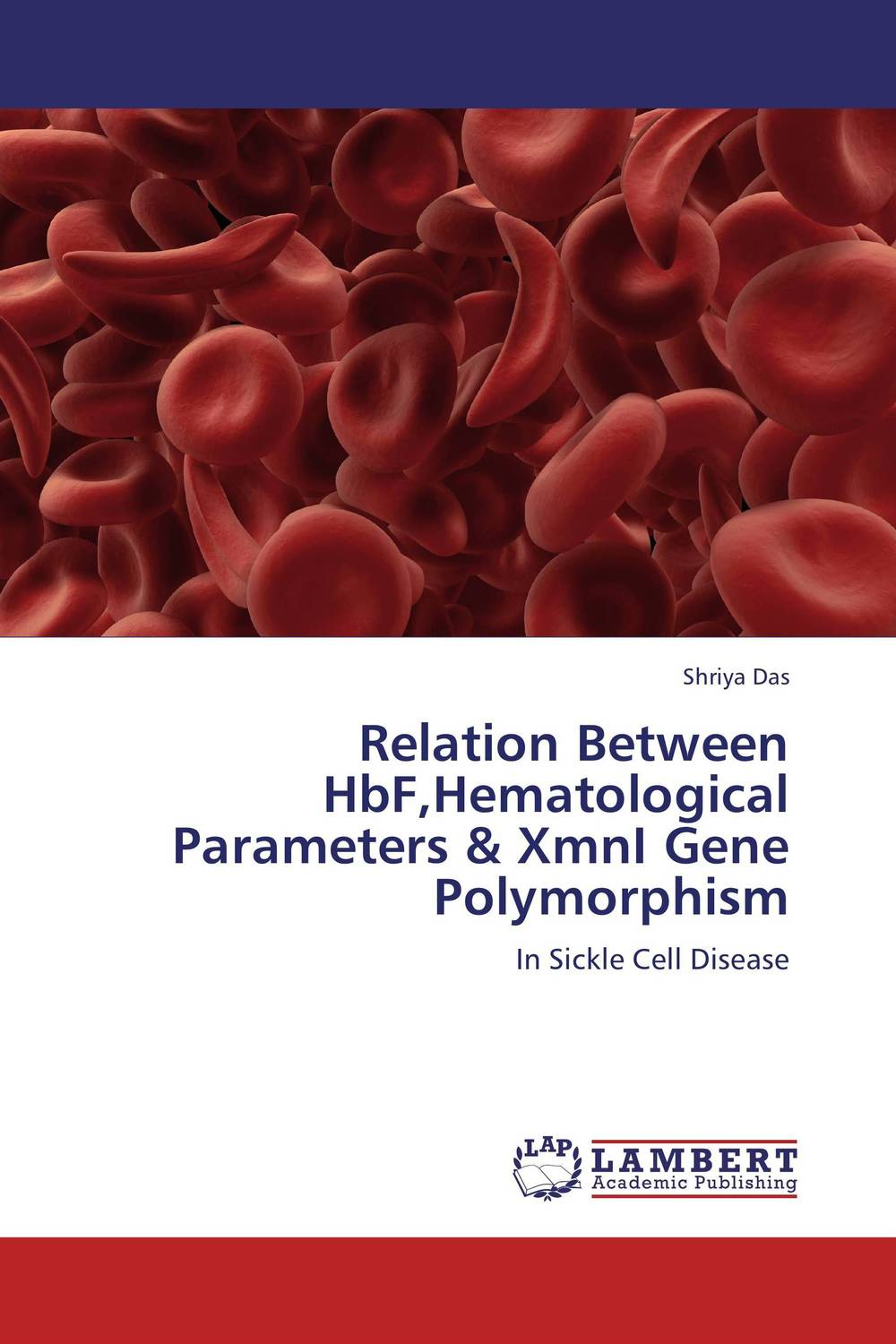 Relation Between HbF,Hematological Parameters & XmnI Gene Polymorphism a preliminary study on association of adiponectin gene polymorphism