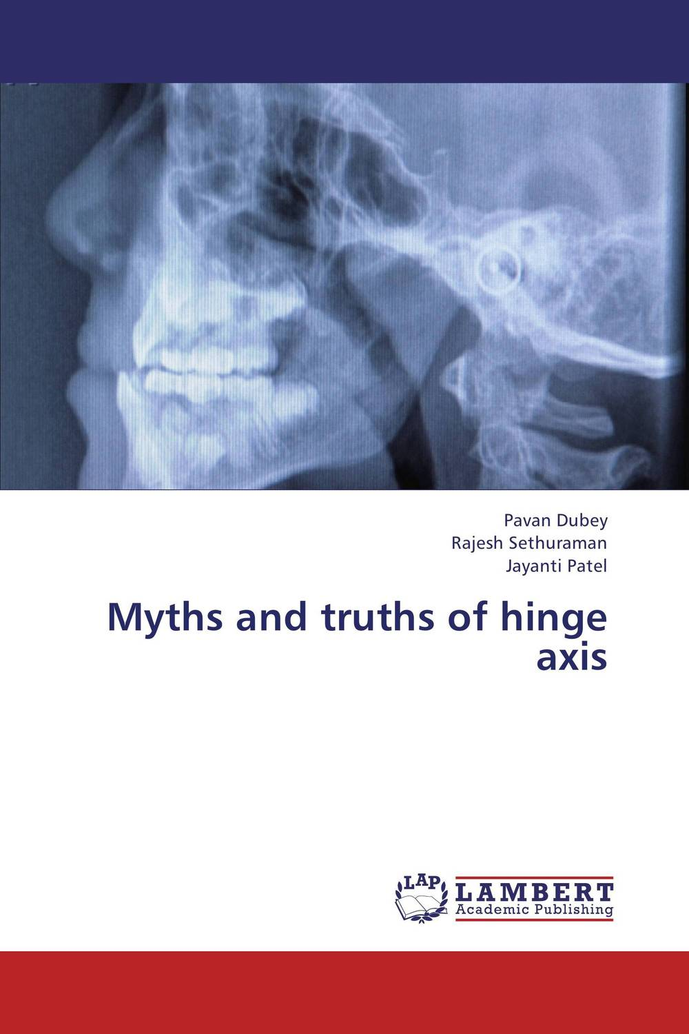 Myths and truths of hinge axis